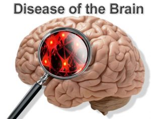 about diseases
